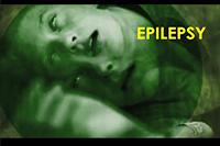 http://healinggaling.ph/ph/wp-content/uploads/sites/5/2016/09/epilepsy.png