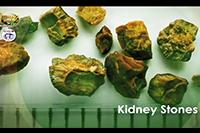 http://healinggaling.ph/ph/wp-content/uploads/sites/5/2016/09/uric-acid.png
