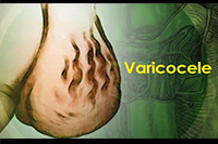 http://healinggaling.ph/ph/wp-content/uploads/sites/5/2016/09/varicocele.png
