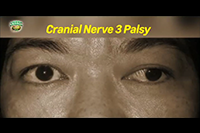 http://healinggaling.ph/ph/wp-content/uploads/sites/5/2017/05/cranial-nerve-3-palsy.png