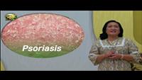 http://healinggaling.ph/ph/wp-content/uploads/sites/5/2017/06/Psoriasis-wpcf_200x113.png