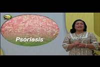 http://healinggaling.ph/ph/wp-content/uploads/sites/5/2017/06/Psoriasis.png