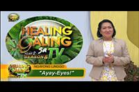 http://healinggaling.ph/ph/wp-content/uploads/sites/5/2017/07/sore-eyes.png