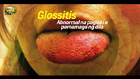 http://healinggaling.ph/ph/wp-content/uploads/sites/5/2017/08/glossitis-wpcf_200x113.png