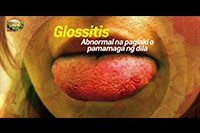 http://healinggaling.ph/ph/wp-content/uploads/sites/5/2017/08/glossitis.png
