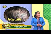 http://healinggaling.ph/ph/wp-content/uploads/sites/5/2017/09/Folliculitis.jpg