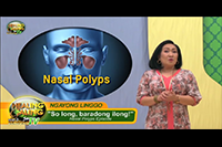 http://healinggaling.ph/ph/wp-content/uploads/sites/5/2017/10/Nasal-Polyps.png