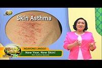 http://healinggaling.ph/ph/wp-content/uploads/sites/5/2018/02/Skin-Asthma.jpg