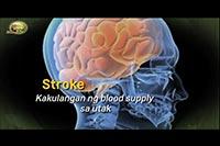 http://healinggaling.ph/ph/wp-content/uploads/sites/5/2018/02/Stroke.jpg
