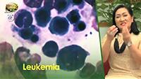 http://healinggaling.ph/wp-content/uploads/2016/10/leukemia-wpcf_200x113.png