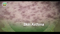 http://healinggaling.ph/wp-content/uploads/2017/04/Skin-Asthma-wpcf_200x113.png