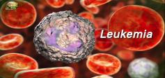 http://healinggaling.ph/wp-content/uploads/2019/09/Leukemia_pic-wpcf_237x113.png