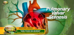 http://healinggaling.ph/wp-content/uploads/2019/09/pulmonary-wpcf_237x113.png