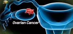 http://healinggaling.ph/wp-content/uploads/2019/12/ovarian_cancer-wpcf_237x113.png