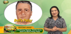 http://healinggaling.ph/wp-content/uploads/2020/02/bells_palsy-wpcf_237x113.png