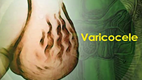 http://healinggaling.ph/wp-content/uploads/sites/5/2016/09/varicocele-wpcf_200x113.png