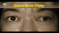http://healinggaling.ph/wp-content/uploads/sites/5/2017/05/cranial-nerve-3-palsy-wpcf_200x113.png