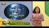 http://healinggaling.ph/wp-content/uploads/sites/5/2017/10/Nasal-Polyps-wpcf_200x113.png