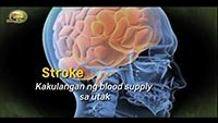 http://healinggaling.ph/wp-content/uploads/sites/5/2018/02/Stroke-wpcf_200x113.jpg